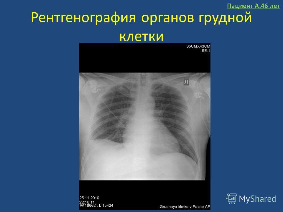 Рентгенография органов грудной клетки Пациент А.46 лет