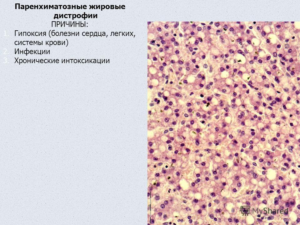 Паренхиматозные жировые дистрофии ПРИЧИНЫ: 1.Гипоксия (болезни сердца, легких, системы крови) 2.Инфекции 3.Хронические интоксикации