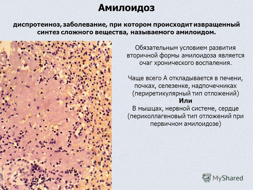 Амилоидоз диспротеиноз, заболевание, при котором происходит извращенный синтез сложного вещества, называемого амилоидом. Обязательным условием развития вторичной формы амилоидоза является очаг хронического воспаления. Чаще всего А откладывается в печ