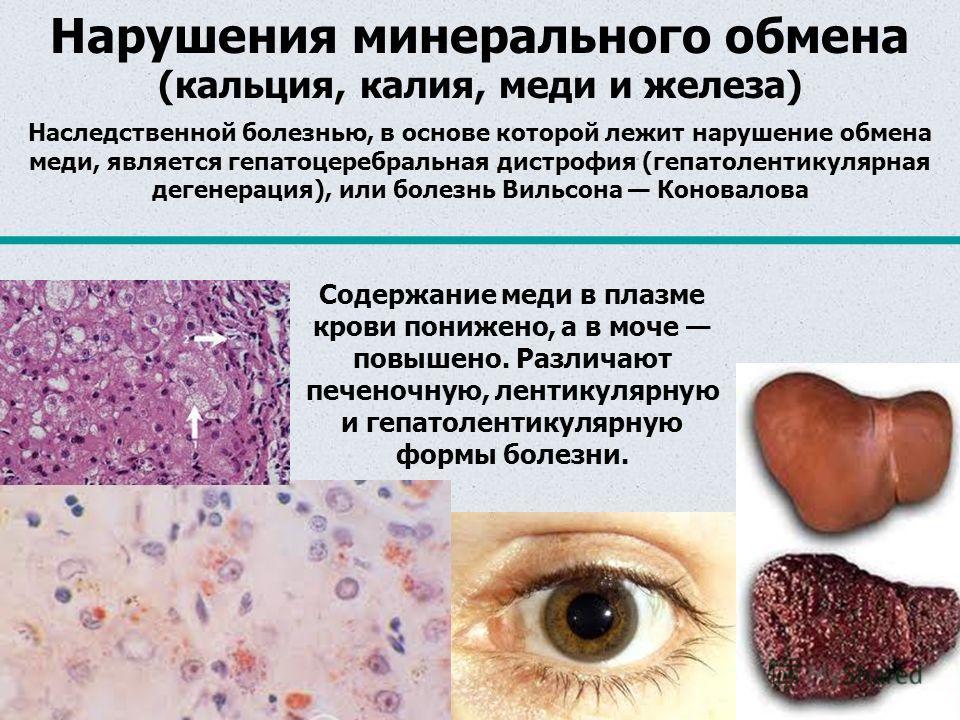 Нарушения минерального обмена (кальция, калия, меди и железа) Наследственной болезнью, в основе которой лежит нарушение обмена меди, является гепатоцеребральная дистрофия (гепатолентикулярная дегенерация), или болезнь Вильсона Коновалова Содержание м