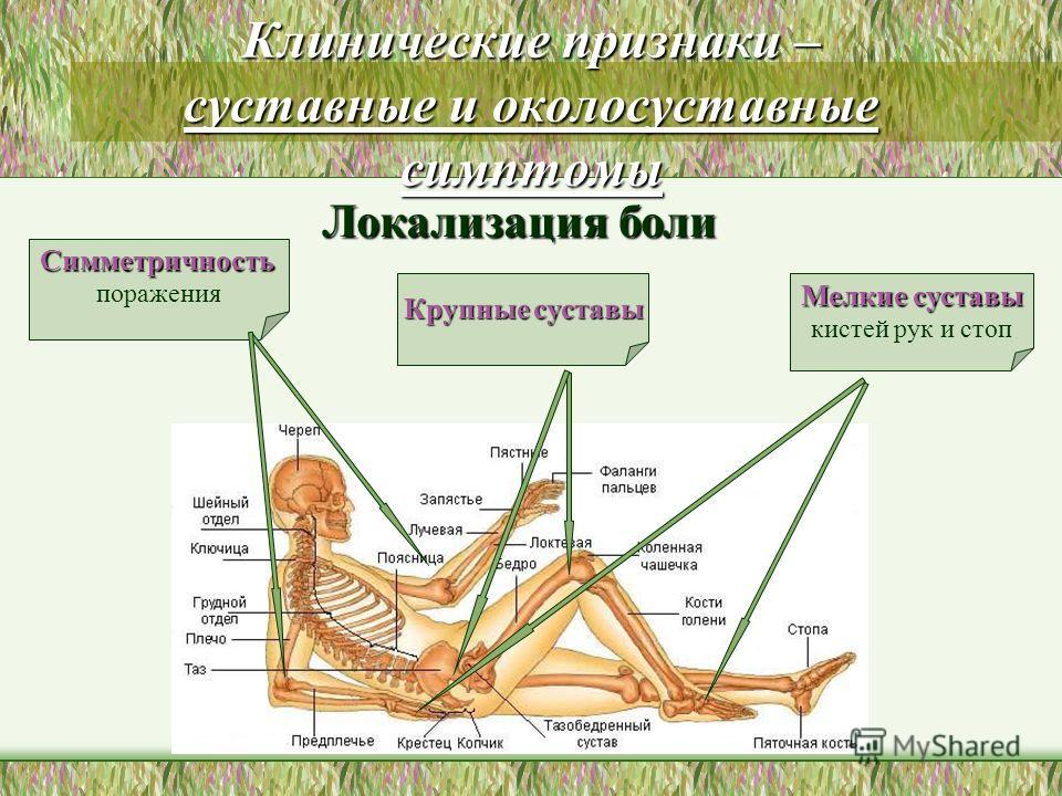 Клинические признаки – суставные и околосуставные симптомы Мелкие суставы кистей рук и стоп Крупные суставы Симметричность поражения Локализация боли