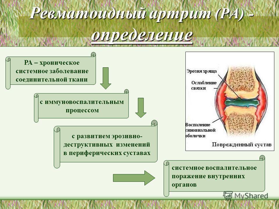 Ревматоидный артрит (РА) - определение РА – хроническое системное заболевание соединительной ткани с иммуновоспалительным процессом с развитием эрозивно- деструктивных изменений в периферических суставах системное воспалительное поражение внутренних