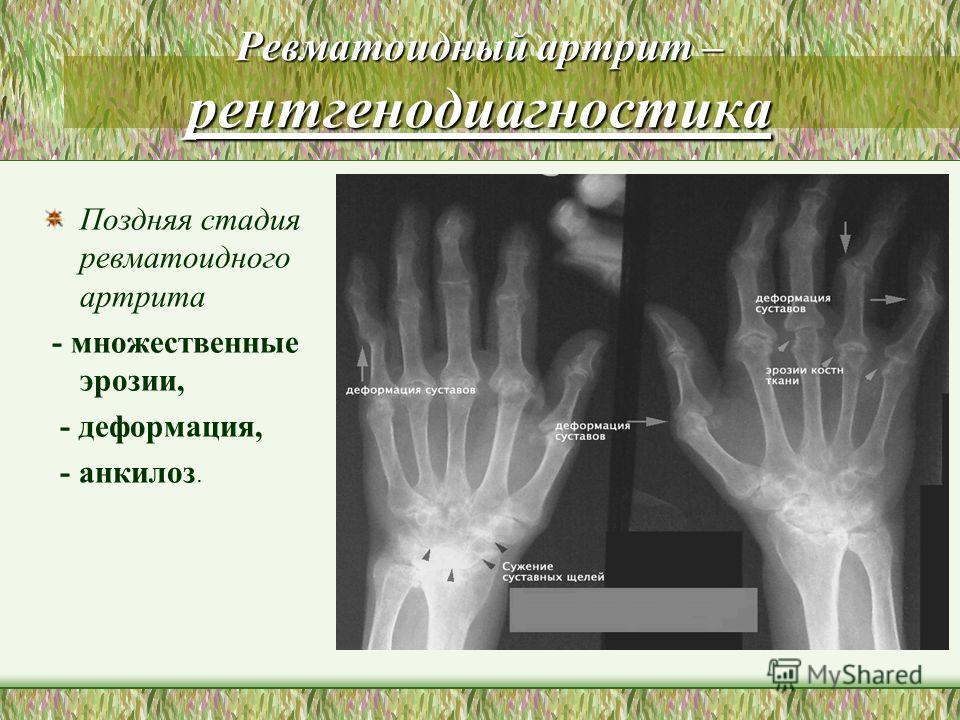 Ревматоидный артрит – рентгенодиагностика Поздняя стадия ревматоидного артрита - множественные эрозии, - деформация, - анкилоз.
