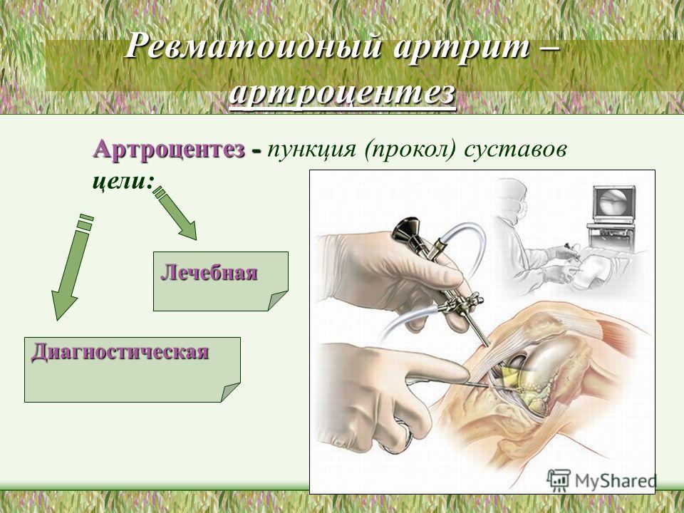 Ревматоидный артрит – артроцентез Диагностическая Лечебная Артроцентез - Артроцентез - пункция (прокол) суставов цели: