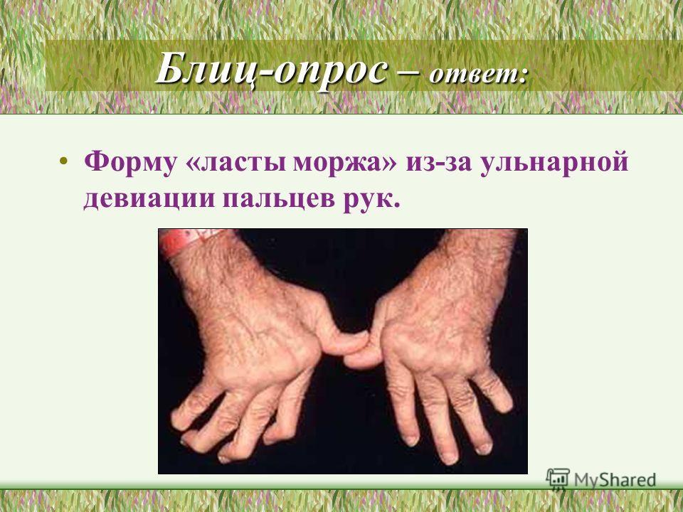 Блиц-опрос – ответ: Форму «ласты моржа» из-за ульнарной девиации пальцев рук.