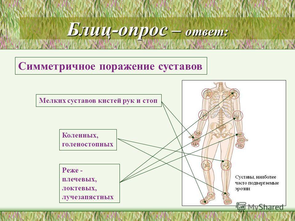 Блиц-опрос – ответ: Мелких суставов кистей рук и стоп Коленных, голеностопных Реже - плечевых, локтевых, лучезапястных Симметричное поражение суставов