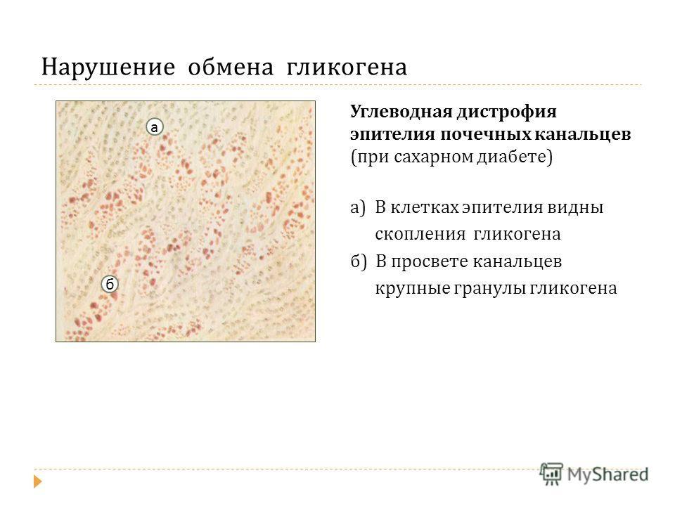 Нарушение обмена гликогена Углеводная дистрофия эпителия почечных канальцев ( при сахарном диабете ) а ) В клетках эпителия видны скопления гликогена б ) В просвете канальцев крупные гранулы гликогена а б