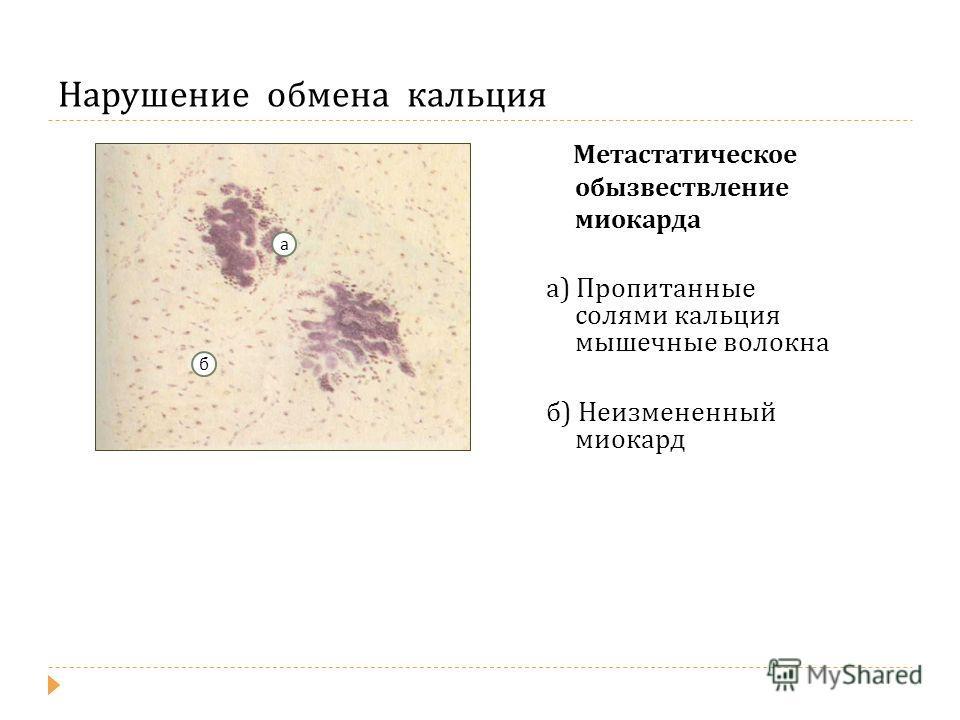 Нарушение обмена кальция Метастатическое обызвествление миокарда а ) Пропитанные солями кальция мышечные волокна б ) Неизмененный миокард а б