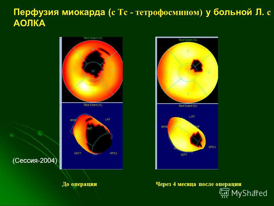 11 Перфузия миокарда ( с Тс - тетрофосмином) у больной Л. с АОЛКА До операцииЧерез 4 месяца после операции (Сессия-2004)