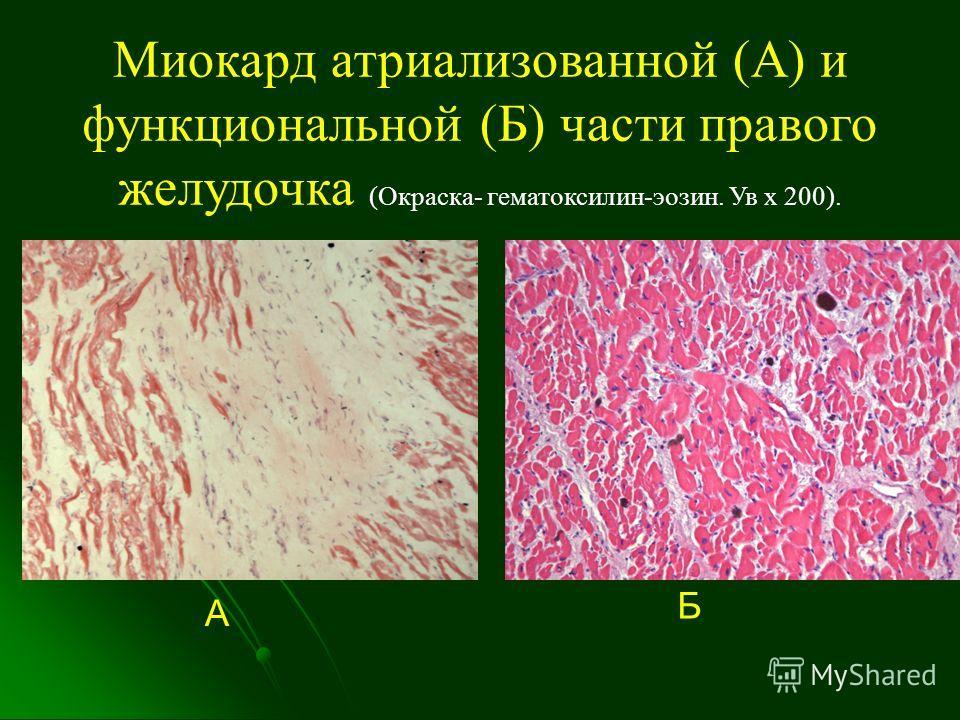 Миокард атриализованной (А) и функциональной (Б) части правого желудочка (Окраска- гематоксилин-эозин. Ув х 200). А Б