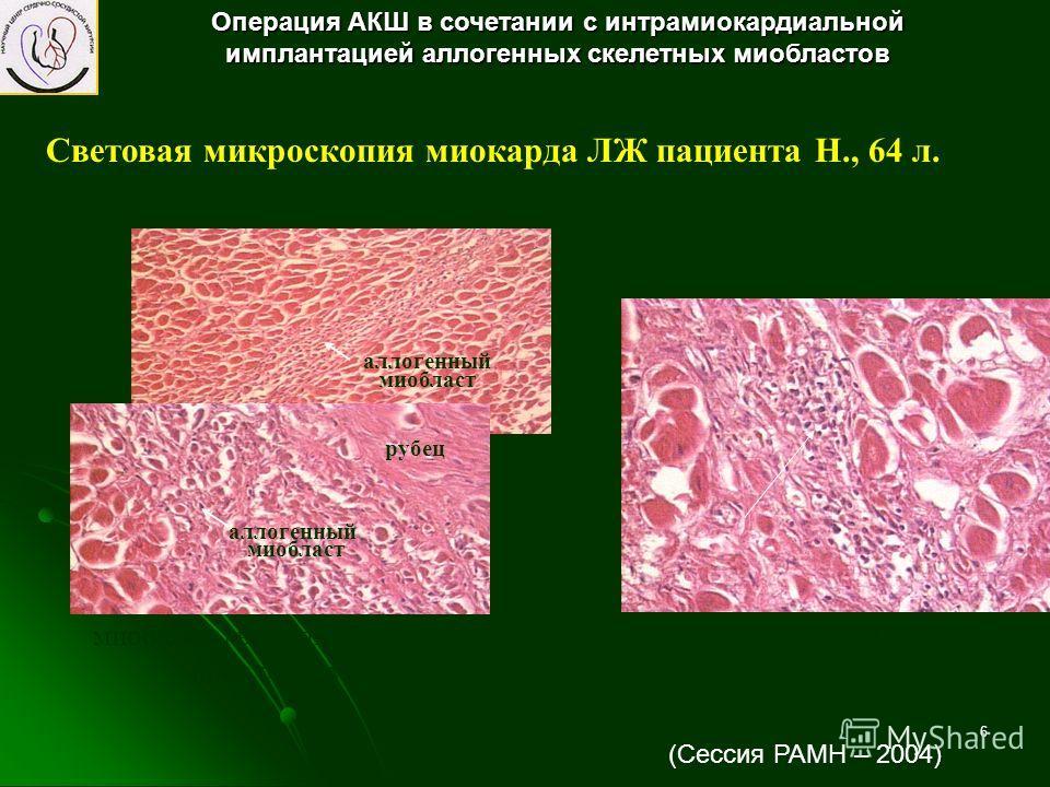 6 Световая микроскопия миокарда ЛЖ пациента Н., 64 л. отторжение лимфоцитами имплантированных миобластов миобласты в соединительнотканной прослойке миокарда рубец аллогенный миобласт аллогенный миобласт Операция АКШ в сочетании с интрамиокардиальной
