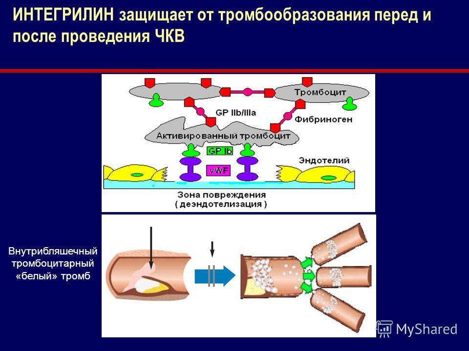 Для внутреннего использования Внутрибляшечный тромбоцитарный «белый» тромб ИНТЕГРИЛИН защищает от тромбообразования перед и после проведения ЧКВ