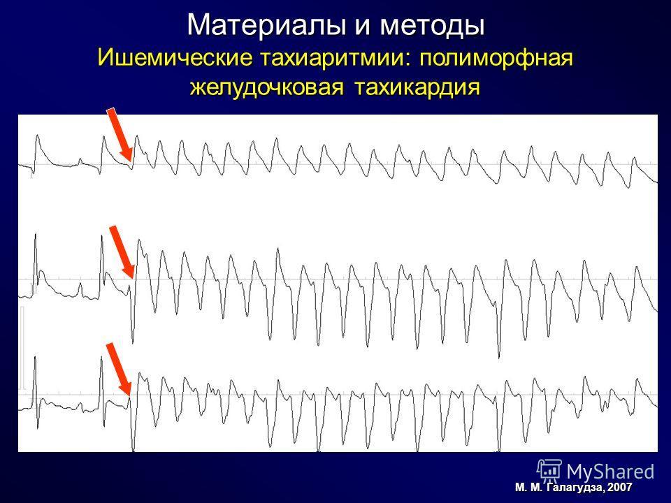 Материалы и методы Ишемические тахиаритмии: полиморфная желудочковая тахикардия М. М. Галагудза, 2007