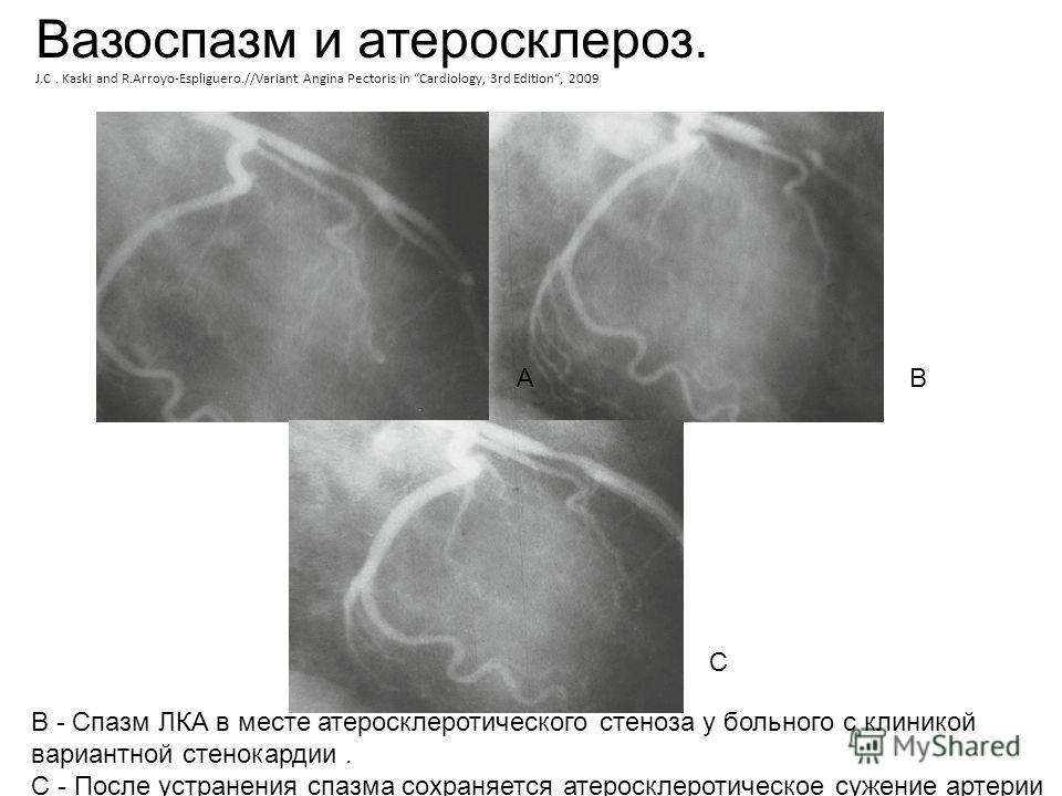 B - Спазм ЛКА в месте атеросклеротического стеноза у больного с клиникой вариантной стенокардии. C - После устранения спазма сохраняется атеросклеротическое сужение артерии A C B Вазоспазм и атеросклероз. J.C. Kaski and R.Arroyo-Espliguero.//Variant