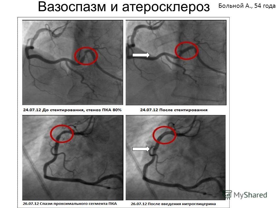 Больной А., 54 года Вазоспазм и атеросклероз