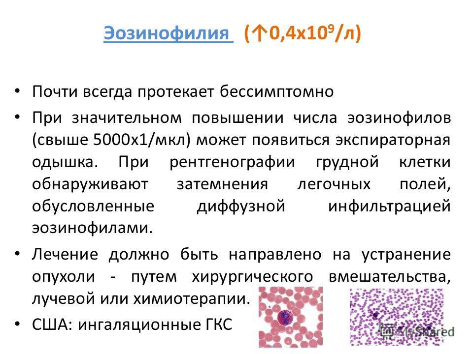 Эозинофилия (0,4х10 9 /л) Почти всегда протекает бессимптомно При значительном повышении числа эозинофилов (свыше 5000х1/мкл) может появиться экспираторная одышка. При рентгенографии грудной клетки обнаруживают затемнения легочных полей, обусловленны