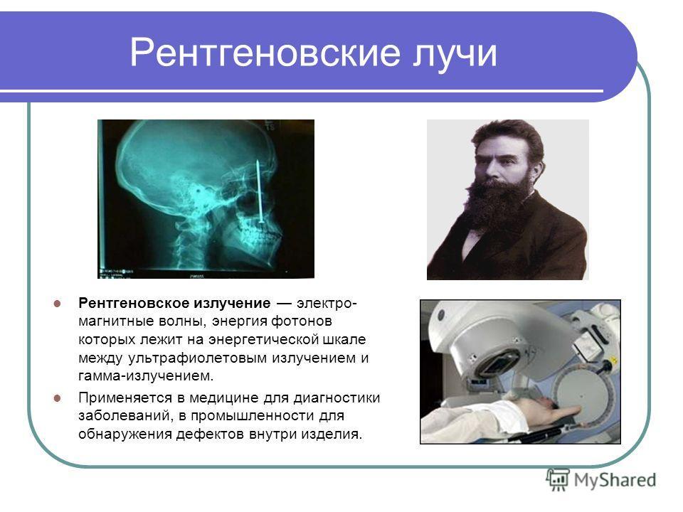 Рентгеновские лучи Рентгеновское излучение электро- магнитные волны, энергия фотонов которых лежит на энергетической шкале между ультрафиолетовым излучением и гамма-излучением. Применяется в медицине для диагностики заболеваний, в промышленности для
