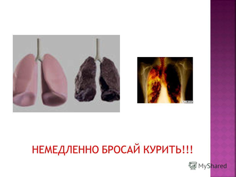 НЕМЕДЛЕННО БРОСАЙ КУРИТЬ!!!