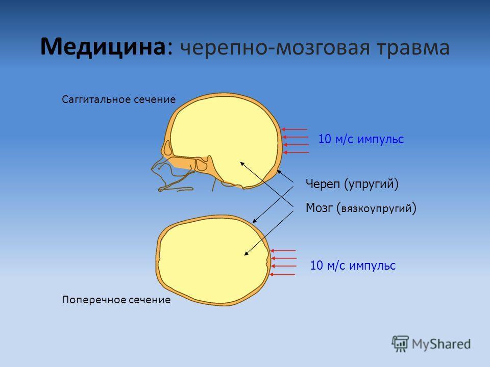 Медицина: черепно-мозговая травма Саггитальное сечение Поперечное сечение Череп (упругий) Мозг ( вязкоупругий ) 10 м/с импульс