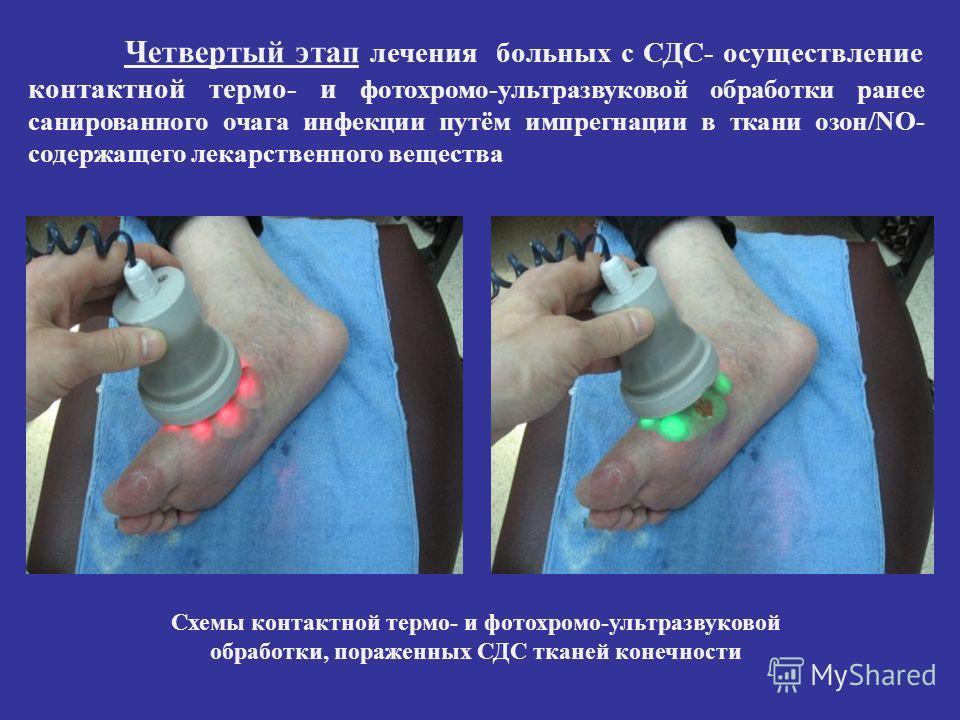 Четвертый этап лечения больных с СДС- осуществление контактной термо- и фотохромо-ультразвуковой обработки ранее санированного очага инфекции путём импрегнации в ткани озон/NO- содержащего лекарственного вещества Схемы контактной термо- и фотохромо-у