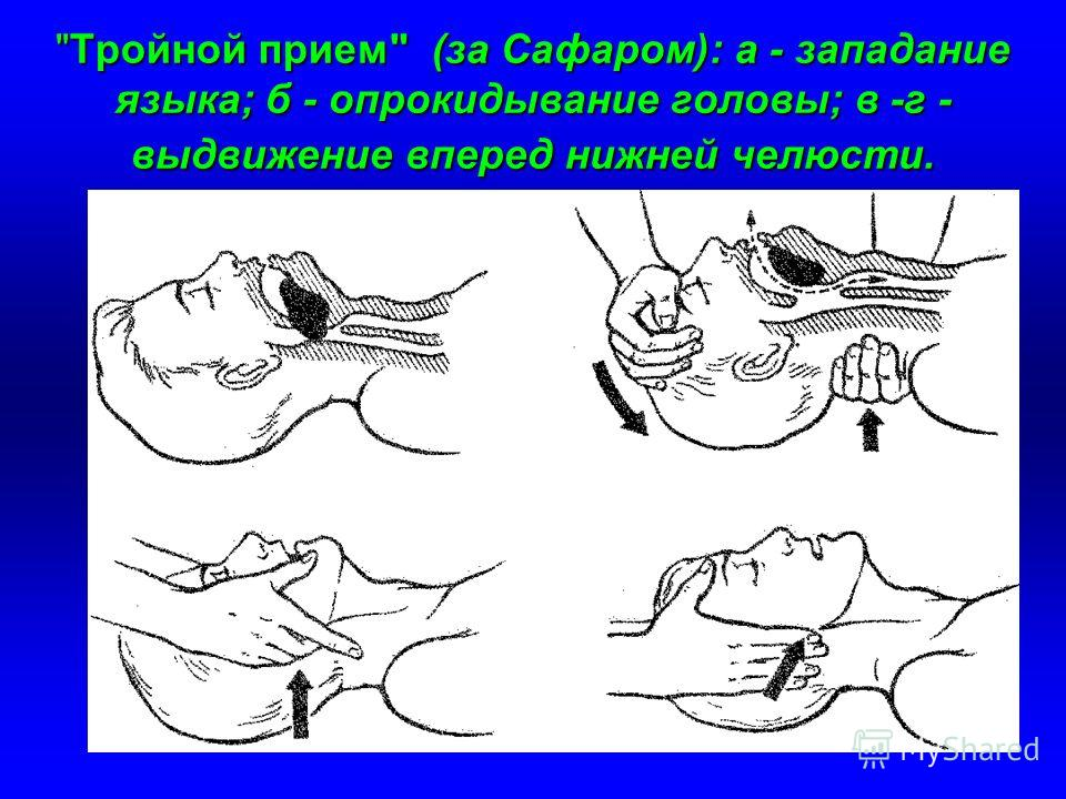 Тройной прием (за Сафаром): а - западание языка; б - опрокидывание головы; в -г - выдвижение вперед нижней челюсти.