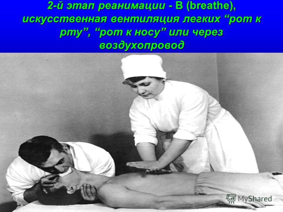 2-й этап реанимации - В (breathe), искусственная вентиляция легких рот к рту, рот к носу или через воздухопровод
