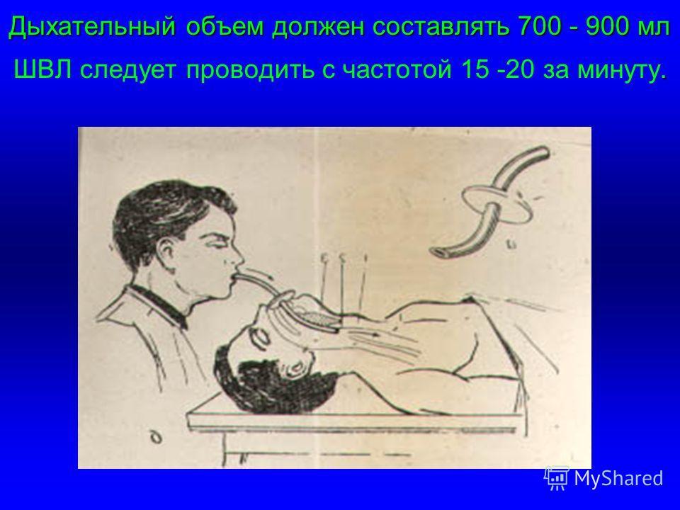 Дыхательный объем должен составлять 700 - 900 мл. Дыхательный объем должен составлять 700 - 900 мл ШВЛ следует проводить с частотой 15 -20 за минуту.