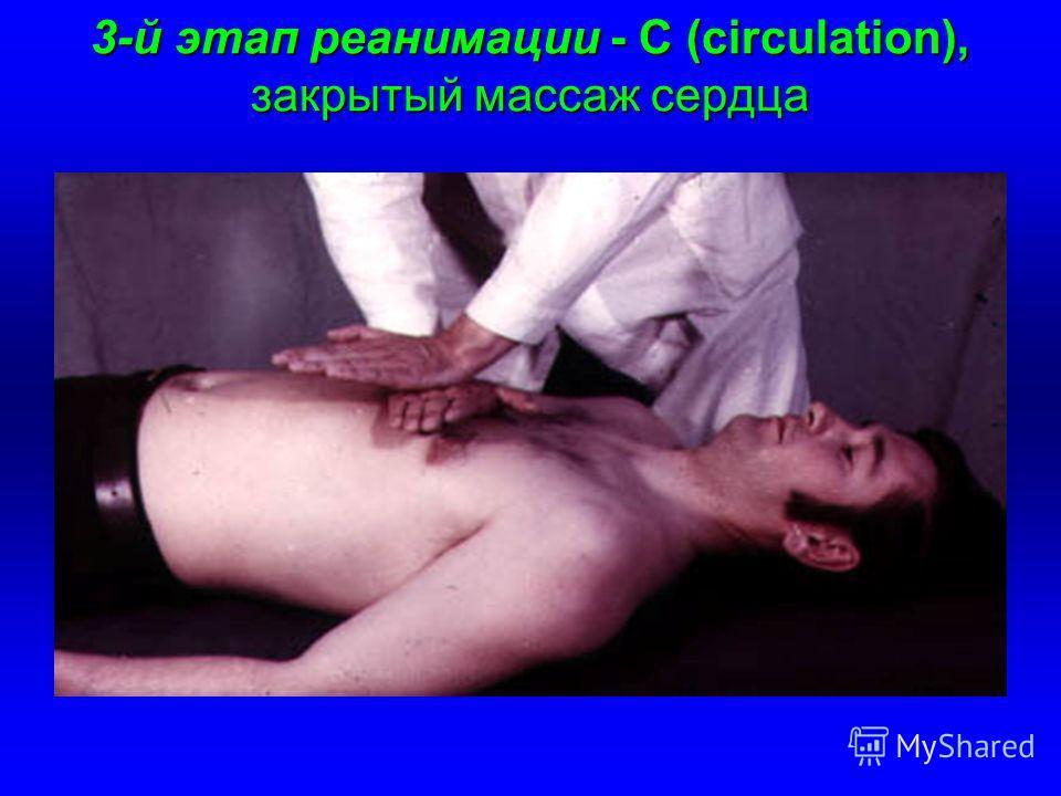 3-й этап реанимации - С (circulation), закрытый массаж сердца
