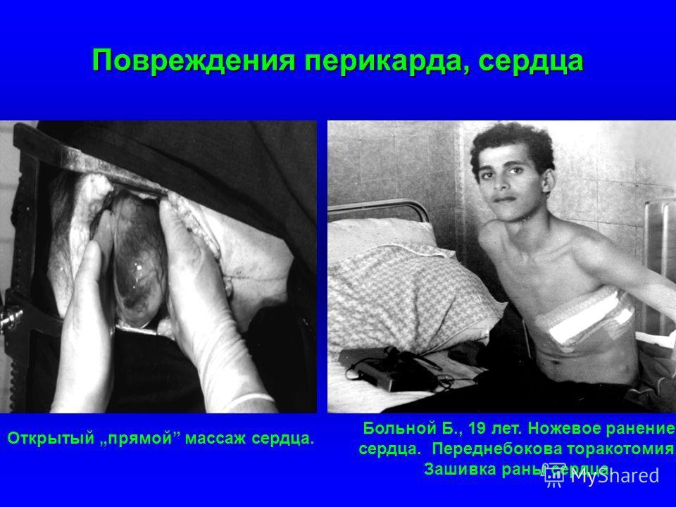 Повреждения перикарда, сердца Больной Б., 19 лет. Ножевое ранение сердца. Переднебокова торакотомия. Зашивка раны сердца. Открытый прямой массаж сердца.