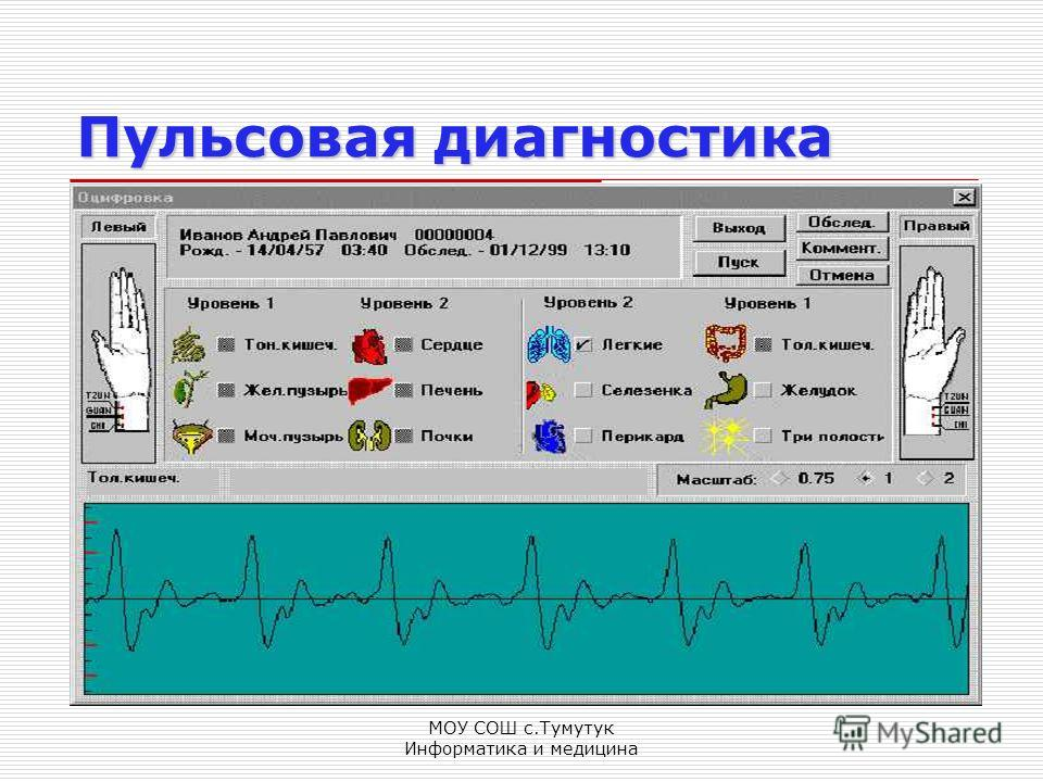 МОУ СОШ с.Тумутук Информатика и медицина Пульсовая диагностика