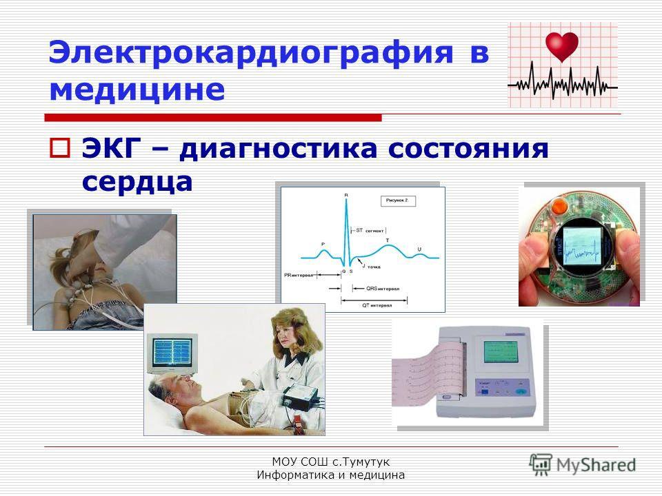 МОУ СОШ с.Тумутук Информатика и медицина Электрокардиография в медицине ЭКГ – диагностика состояния сердца