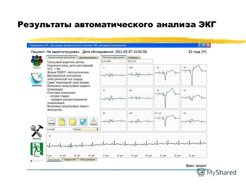 Результаты автоматического анализа ЭКГ