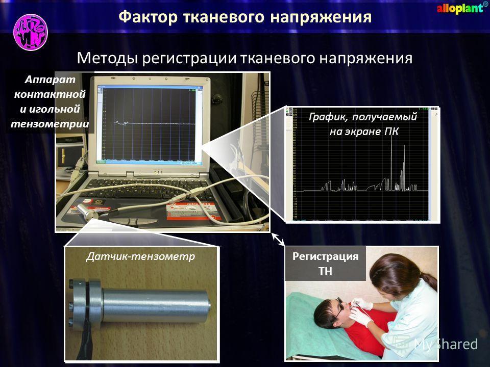 Фактор тканевого напряжения Методы регистрации тканевого напряжения Датчик-тензометр График, получаемый на экране ПК График, получаемый на экране ПК Аппарат контактной и игольной тензометрии Регистрация ТН