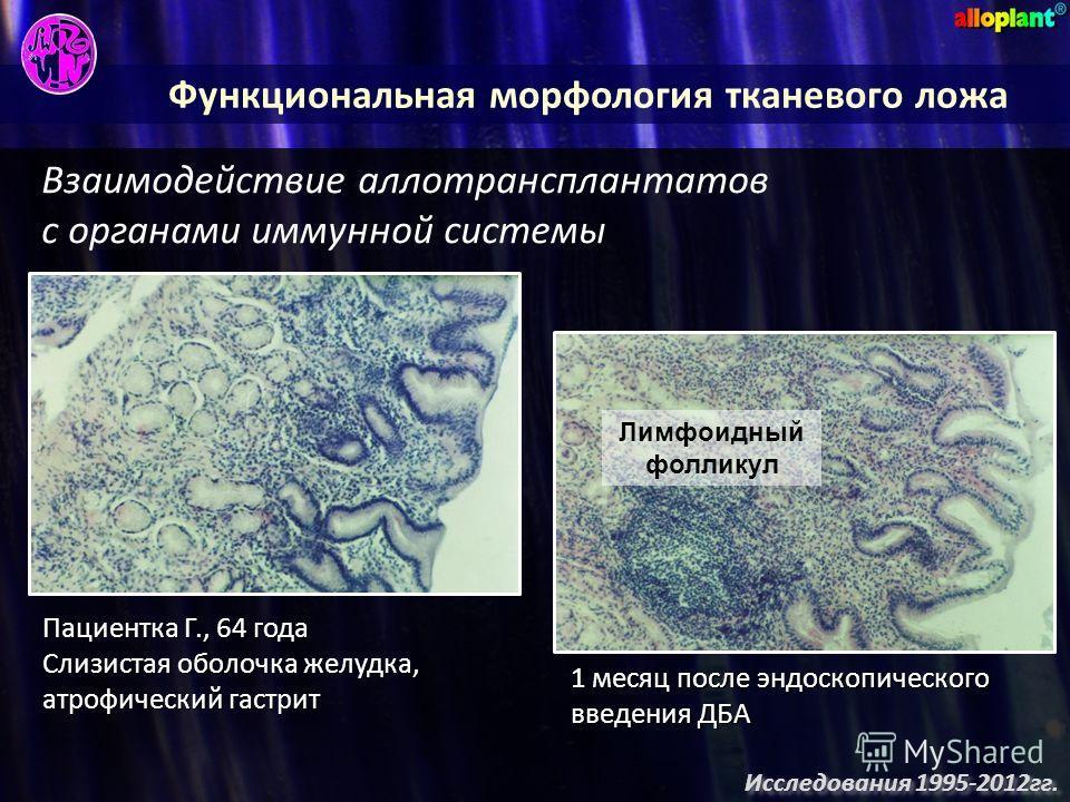 Функциональная морфология тканевого ложа Взаимодействие аллотрансплантатов с органами иммунной системы Пациентка Г., 64 года Слизистая оболочка желудка, атрофический гастрит Пациентка Г., 64 года Слизистая оболочка желудка, атрофический гастрит 1 мес