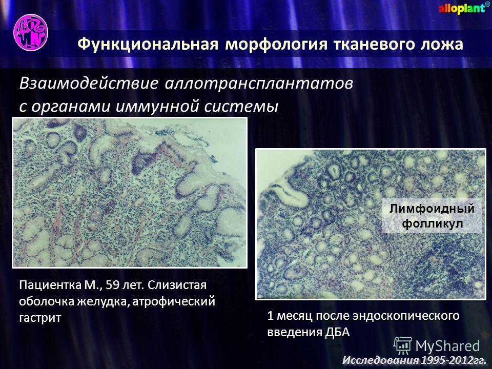 Функциональная морфология тканевого ложа Взаимодействие аллотрансплантатов с органами иммунной системы Пациентка М., 59 лет. Слизистая оболочка желудка, атрофический гастрит 1 месяц после эндоскопического введения ДБА Лимфоидный фолликул Исследования