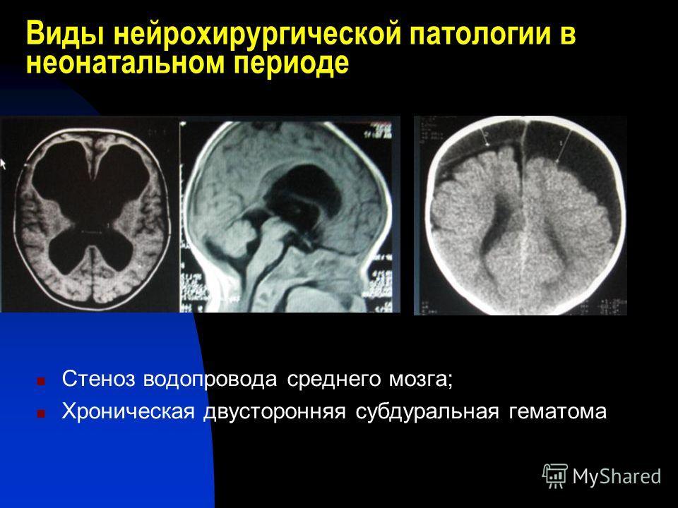 Виды нейрохирургической патологии в неонатальном периоде Стеноз водопровода среднего мозга; Хроническая двусторонняя субдуральная гематома