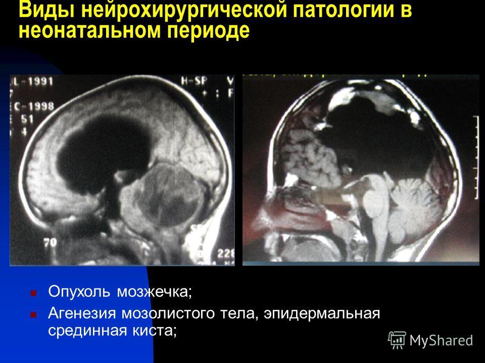 Виды нейрохирургической патологии в неонатальном периоде Опухоль мозжечка; Агенезия мозолистого тела, эпидермальная срединная киста;