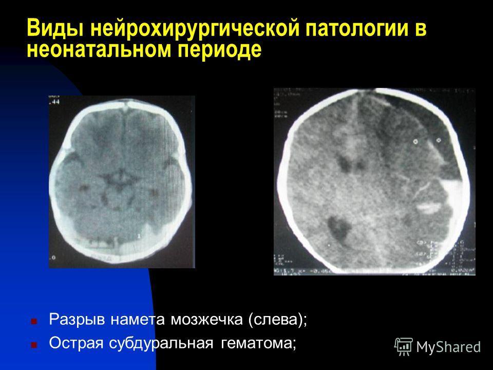Виды нейрохирургической патологии в неонатальном периоде Разрыв намета мозжечка (слева); Острая субдуральная гематома;