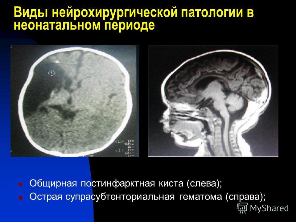 Виды нейрохирургической патологии в неонатальном периоде Общирная постинфарктная киста (слева); Острая супрасубтенториальная гематома (справа);