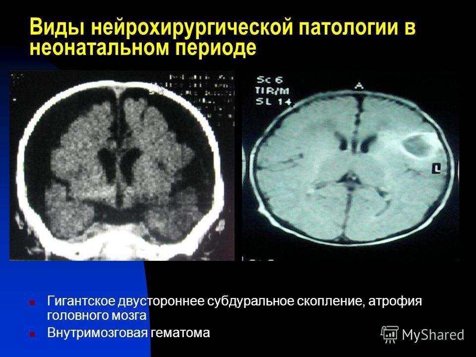 Виды нейрохирургической патологии в неонатальном периоде Гигантское двустороннее субдуральное скопление, атрофия головного мозга Внутримозговая гематома