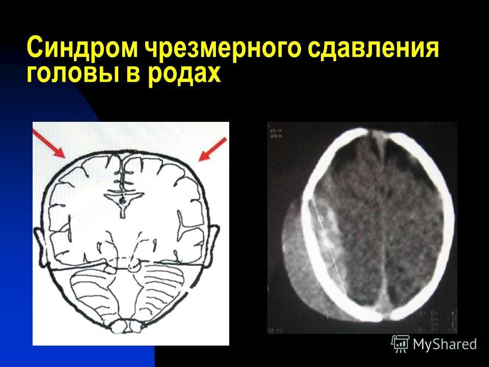 Синдром чрезмерного сдавления головы в родах