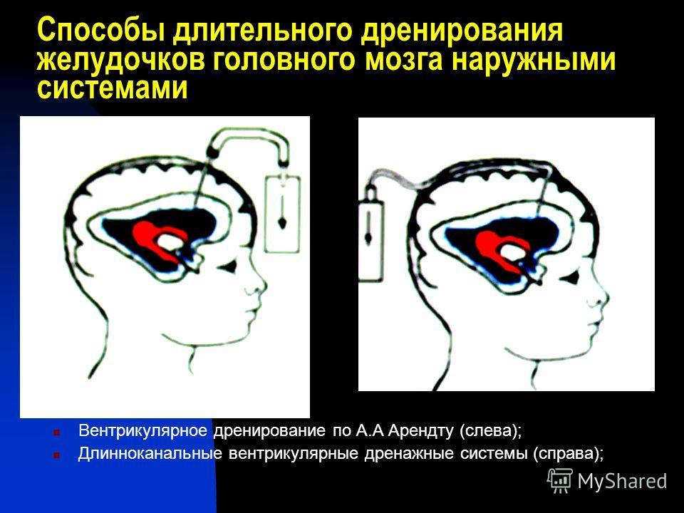 Способы длительного дренирования желудочков головного мозга наружными системами Вентрикулярное дренирование по А.А Арендту (слева); Длинноканальные вентрикулярные дренажные системы (справа);