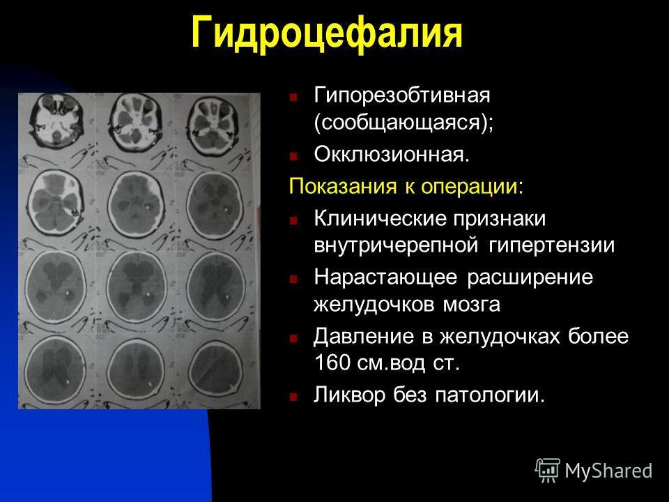 Гидроцефалия Гипорезобтивная (сообщающаяся); Окклюзионная. Показания к операции: Клинические признаки внутричерепной гипертензии Нарастающее расширение желудочков мозга Давление в желудочках более 160 см.вод ст. Ликвор без патологии.