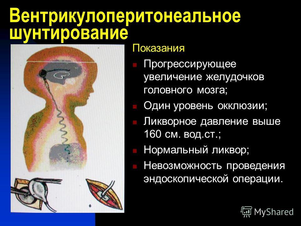Вентрикулоперитонеальное шунтирование Показания Прогрессирующее увеличение желудочков головного мозга; Один уровень окклюзии; Ликворное давление выше 160 см. вод.ст.; Нормальный ликвор; Невозможность проведения эндоскопической операции.