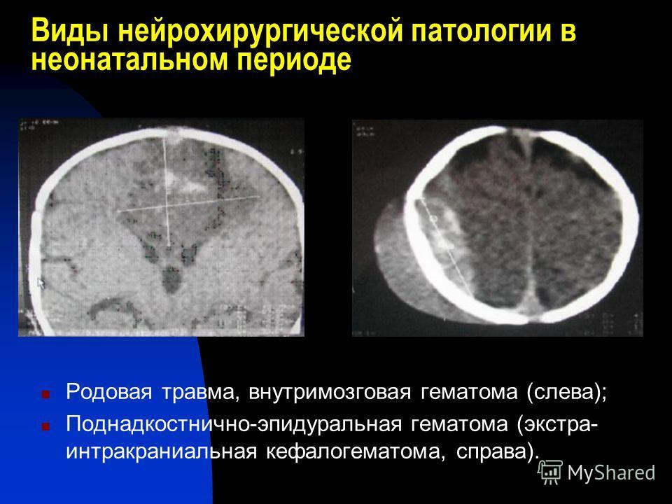 Виды нейрохирургической патологии в неонатальном периоде Родовая травма, внутримозговая гематома (слева); Поднадкостнично-эпидуральная гематома (экстра- интракраниальная кефалогематома, справа).