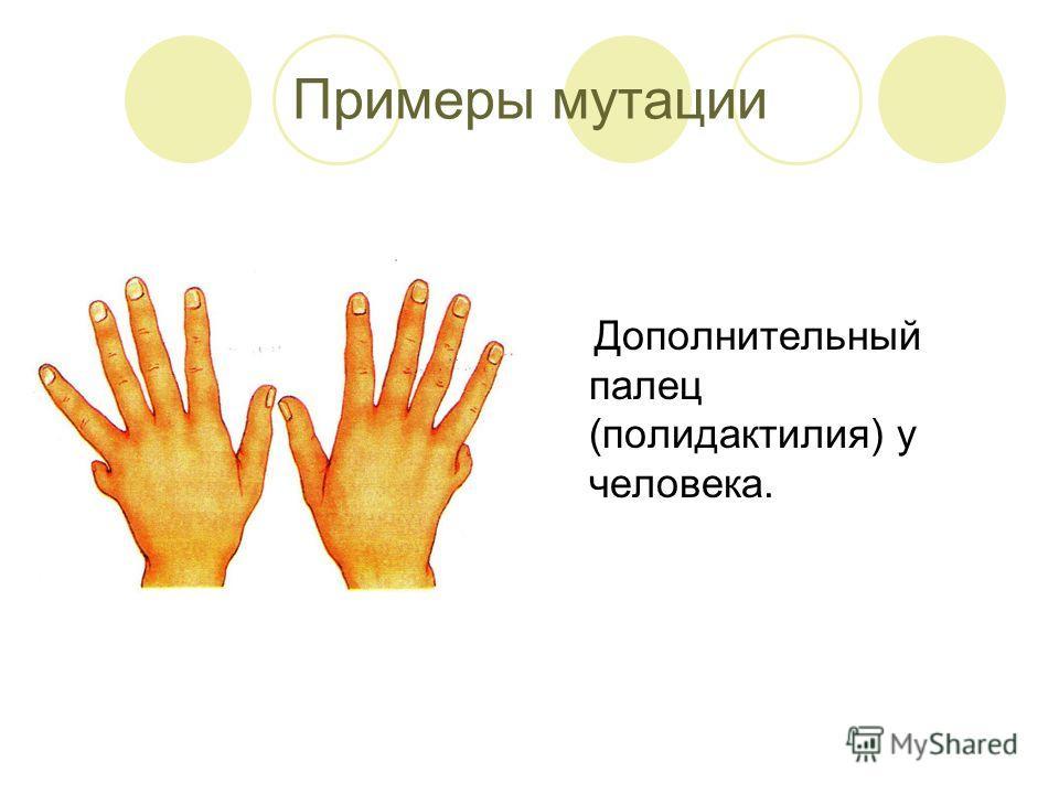 Примеры мутации Дополнительный палец (полидактилия) у человека.