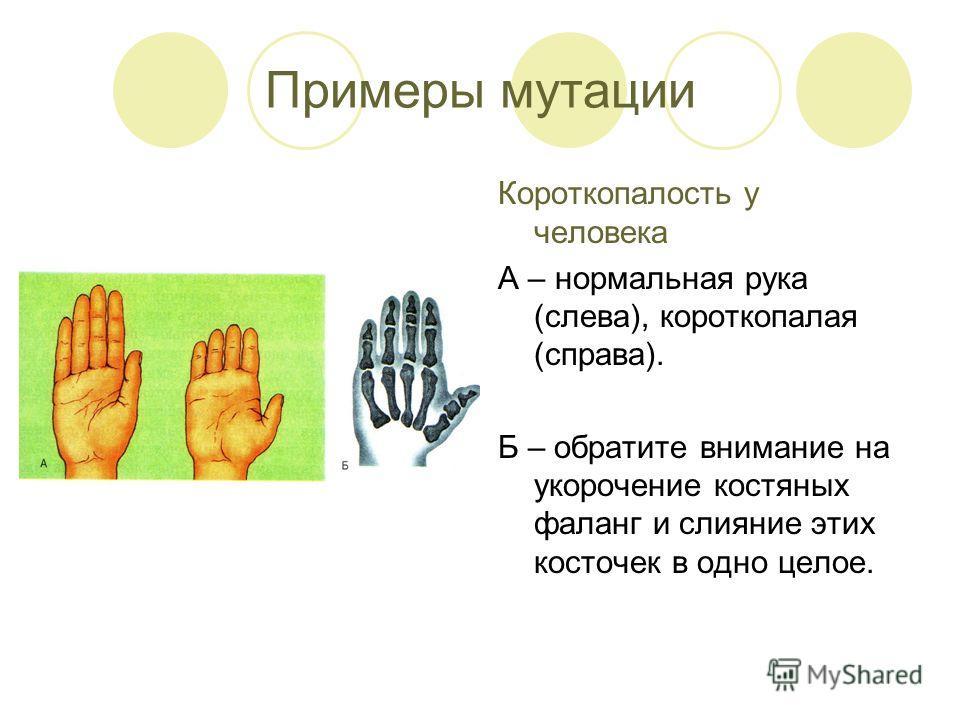 Примеры мутации Короткопалость у человека А – нормальная рука (слева), короткопалая (справа). Б – обратите внимание на укорочение костяных фаланг и слияние этих косточек в одно целое.