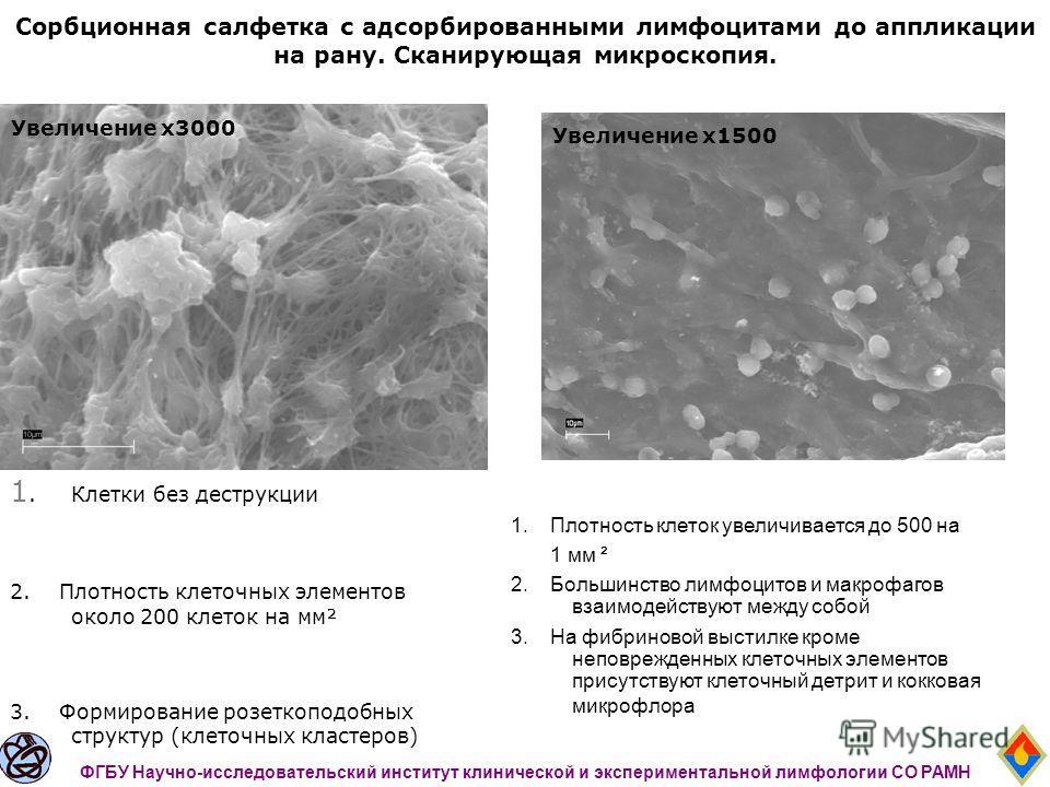 Сорбционная салфетка с адсорбированными лимфоцитами до аппликации на рану. Сканирующая микроскопия. 1.Клетки без деструкции 2. Плотность клеточных элементов около 200 клеток на мм² 3. Формирование розеткоподобных структур (клеточных кластеров) ФГБУ Н