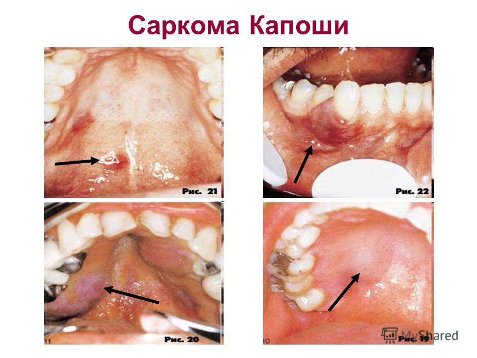 Саркома Капоши