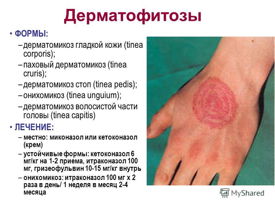 Дерматофитозы ФОРМЫ: –дерматомикоз гладкой кожи (tinea corporis); –паховый дерматомикоз (tinea cruris); –дерматомикоз стоп (tinea pedis); –онихомикоз (tinea unguium); –дерматомикоз волосистой части головы (tinea capitis) ЛЕЧЕНИЕ: – местно: миконазол